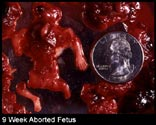 abortion pictures 28